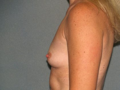 Breast Augmentation Before & After Patient #2503
