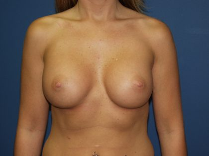 Breast Augmentation Before & After Patient #2857