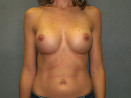 Breast Augmentation Before & After Patient #3173