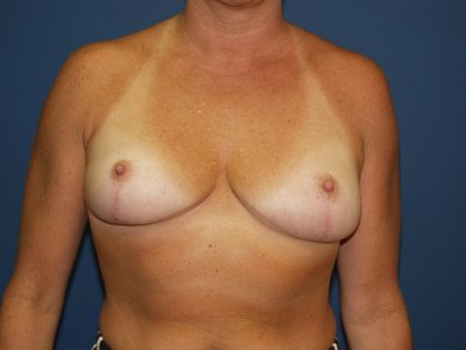 Breast Reduction Before & After Patient #3348