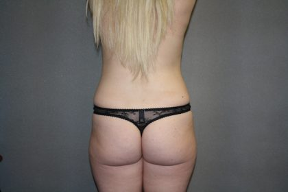 Brazilian Butt Lift Before & After Patient #445