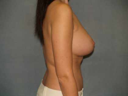 Breast Augmentation Before & After Patient #3222