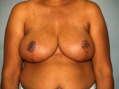 Breast Reduction Before & After Patient #3433