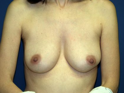 Breast Reconstruction Before & After Patient #2046