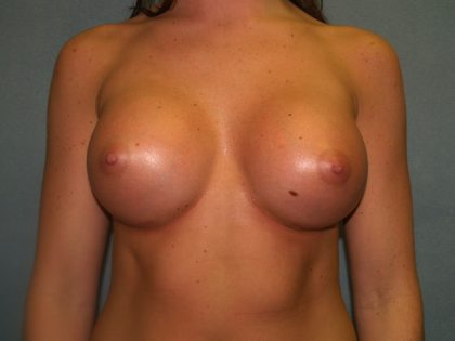 Breast Augmentation Before & After Patient #2475