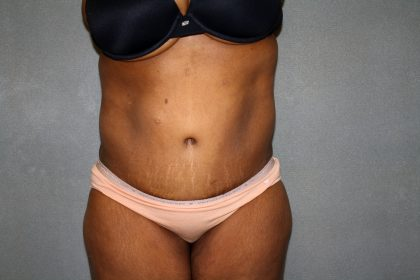 Circumferential Tummy Tuck Before & After Patient #891