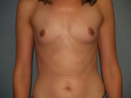 Breast Augmentation Before & After Patient #2524