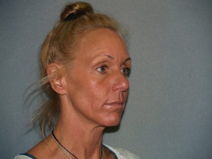 Facelift Before & After Patient #599