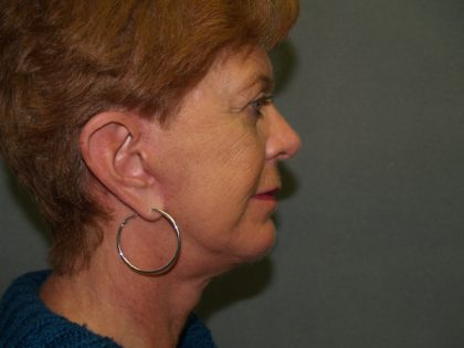Facelift Before & After Patient #606