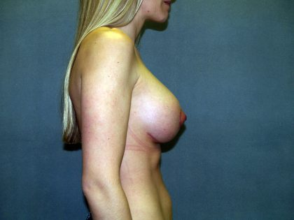 Breast Lift Before & After Patient #1610