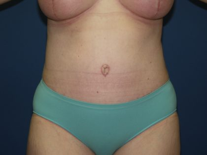Tummy Tuck Before & After Patient #2102