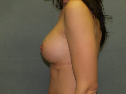 Breast Augmentation Before & After Patient #2440