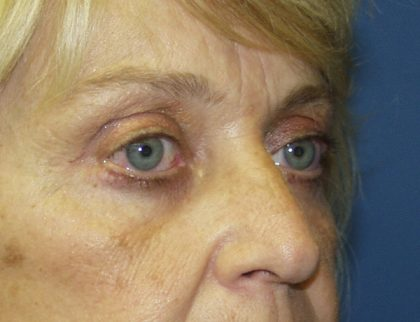 Eye Surgery Before & After Patient #679