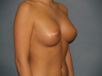 Breast Augmentation Before & After Patient #2703