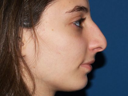 Nose Surgery Before & After Patient #826