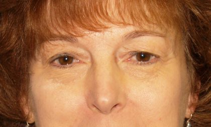 Eye Surgery Before & After Patient #688