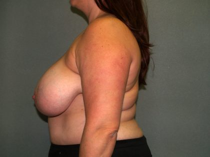 Breast Reconstruction Before & After Patient #1811