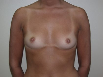 Breast Augmentation Before & After Patient #2976