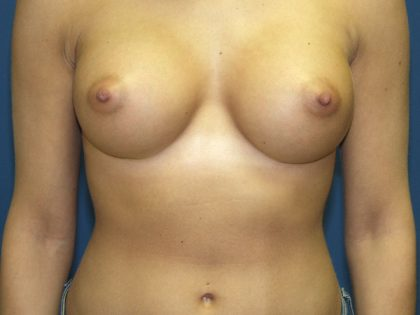Breast Augmentation Before & After Patient #2997