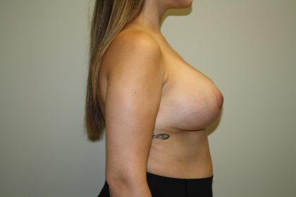 Breast Lift Before & After Patient #1587