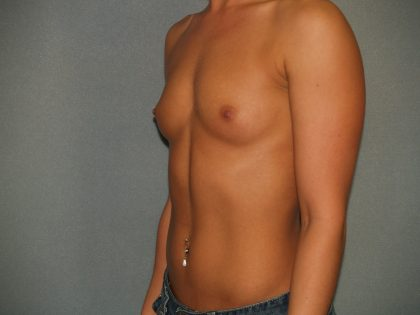 Breast Augmentation Before & After Patient #2864