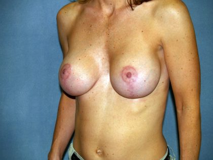 Breast Lift Before & After Patient #1652