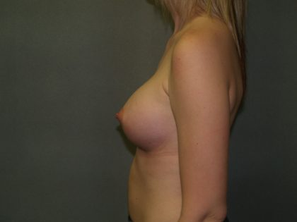 Breast Augmentation Before & After Patient #2815