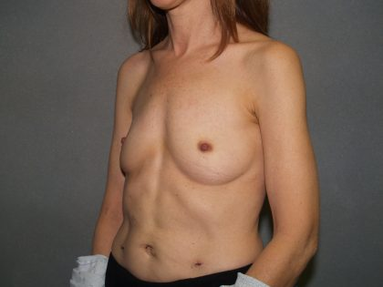 Breast Reconstruction Before & After Patient #2144