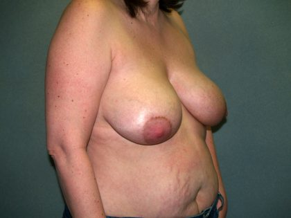 Breast Reconstruction Before & After Patient #2172