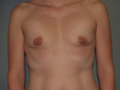 Breast Augmentation Before & After Patient #3160