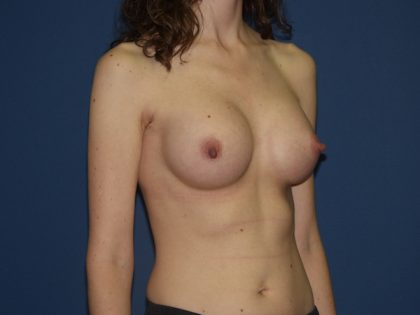 Breast Augmentation Before & After Patient #3046