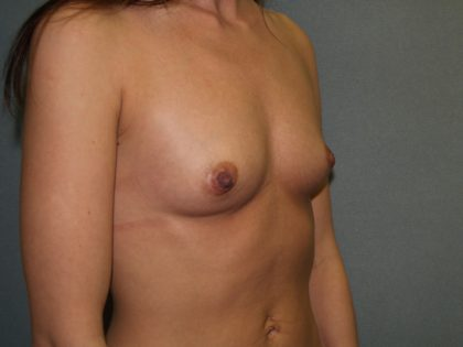 Breast Augmentation Before & After Patient #2654