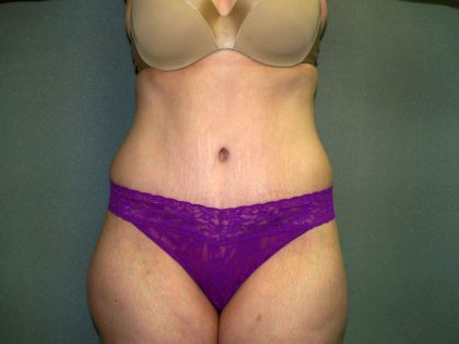 Tummy Tuck Before & After Patient #2117