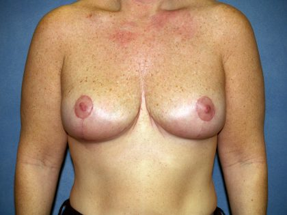 Breast Lift Before & After Patient #1638