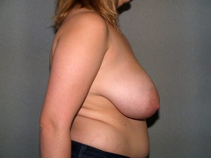 Breast Reduction Before & After Patient #3307