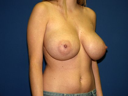 Breast Reduction Before & After Patient #3475