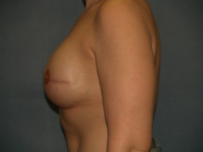 Breast Augmentation Before & After Patient #1948