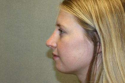 Nose Surgery Before & After Patient #797