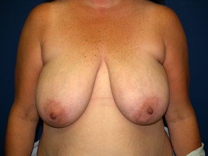 Breast Reduction Before & After Patient #3284