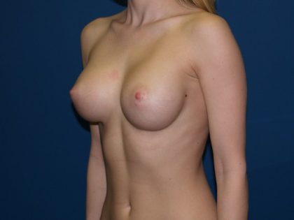Breast Augmentation Before & After Patient #2605