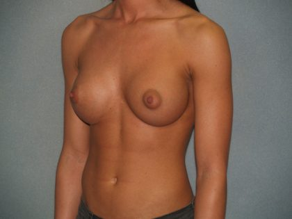 Breast Augmentation Before & After Patient #2633