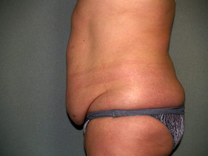 Tummy Tuck Before & After Patient #2389