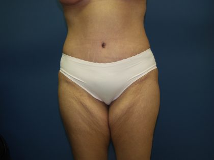 Tummy Tuck Before & After Patient #2251