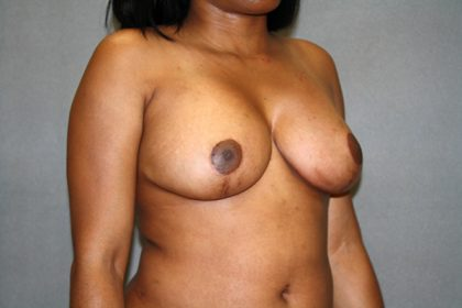 Breast Reduction Before & After Patient #3408