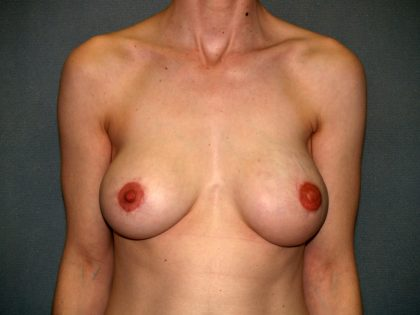 Breast Reconstruction Before & After Patient #1775