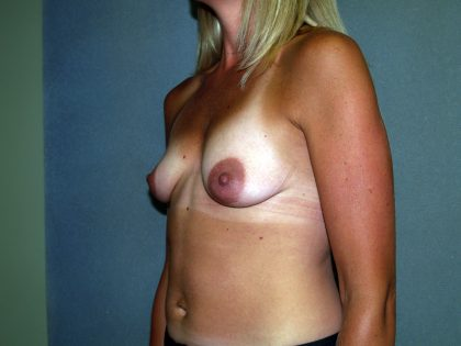 Breast Lift Before & After Patient #1688