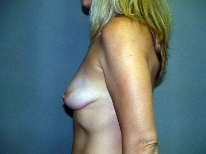 Breast Lift Before & After Patient #1660