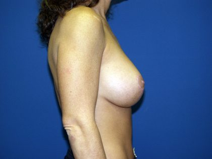 Breast Lift Before & After Patient #1674