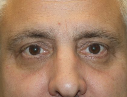 Eye Surgery Before & After Patient #685