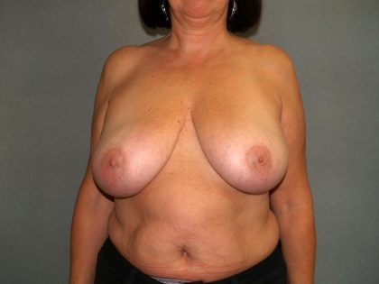 Breast Reconstruction Before & After Patient #2081